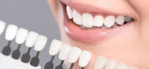 What's the difference between Zirconium, Porcelain, and E-max crowns?