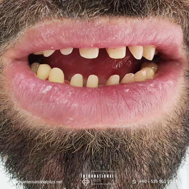 whitening-smile-2