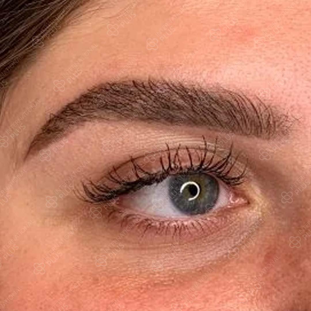 22-eye.jpg