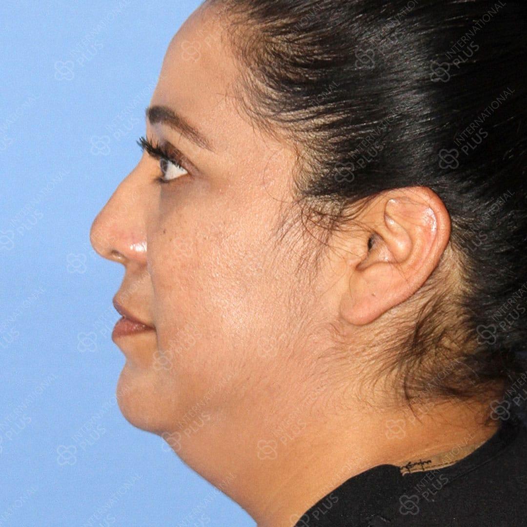 Neck-Liposuction-2.jpg