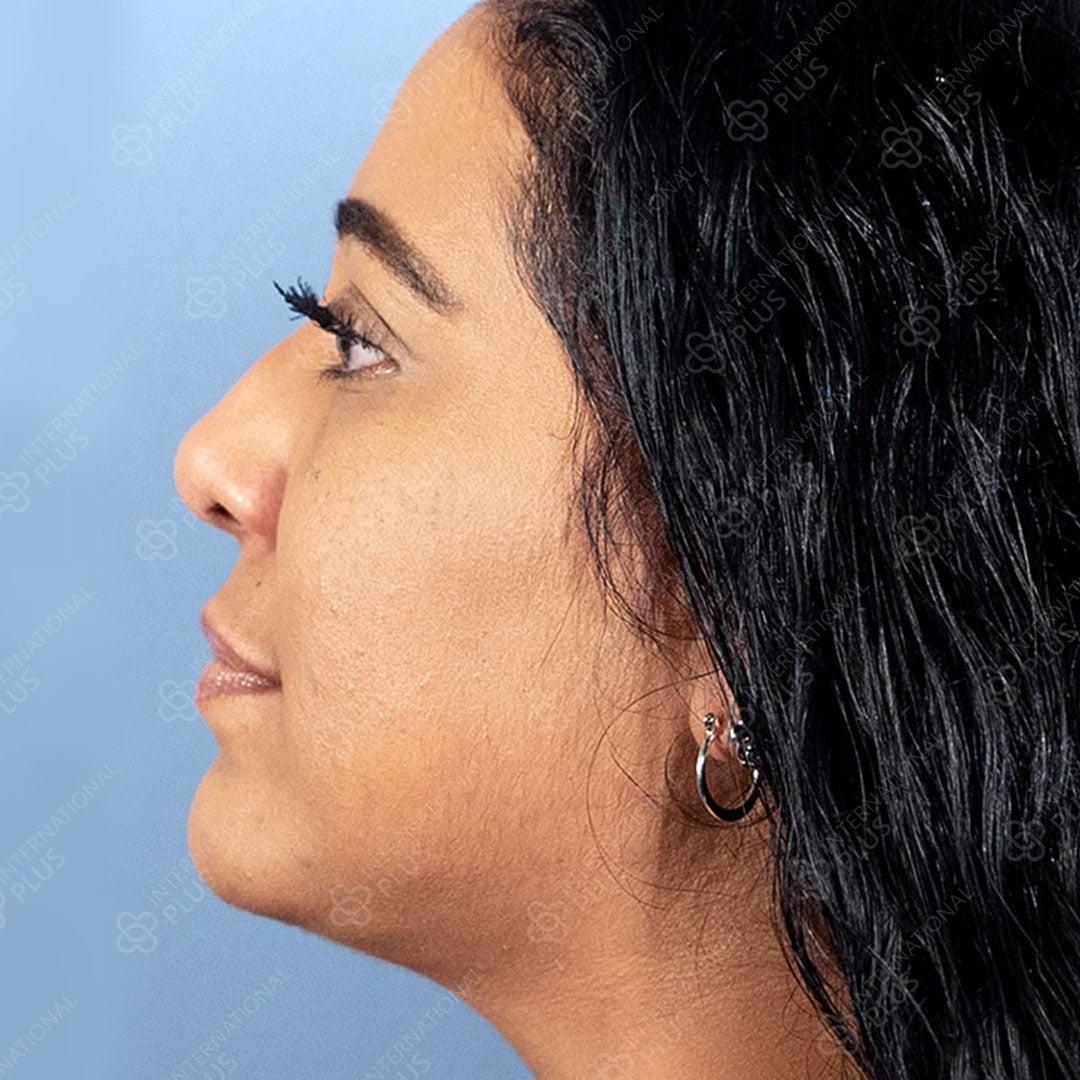 Neck-Liposuction.jpg