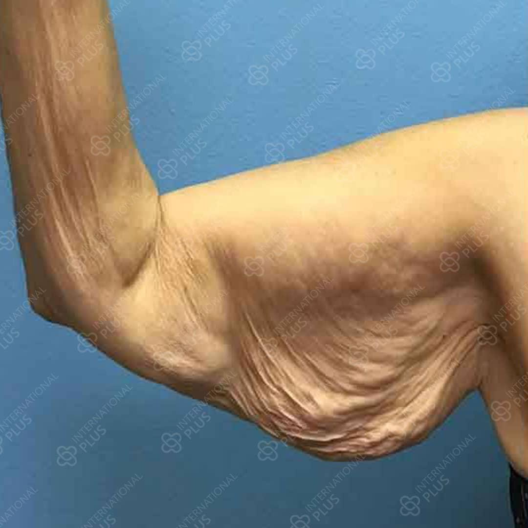 arm-ba-1.jpg