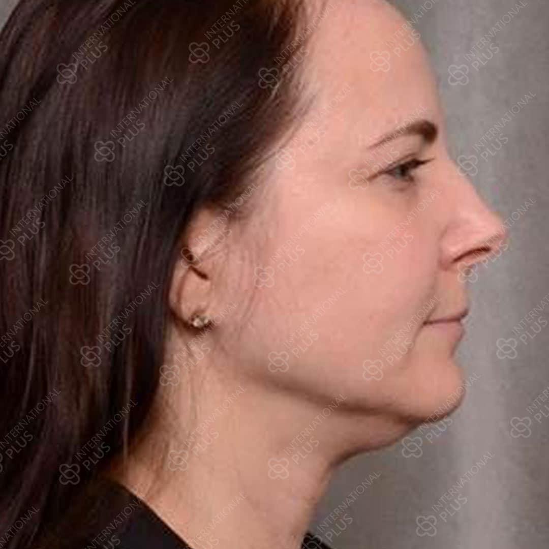 neck-ba-1.jpg