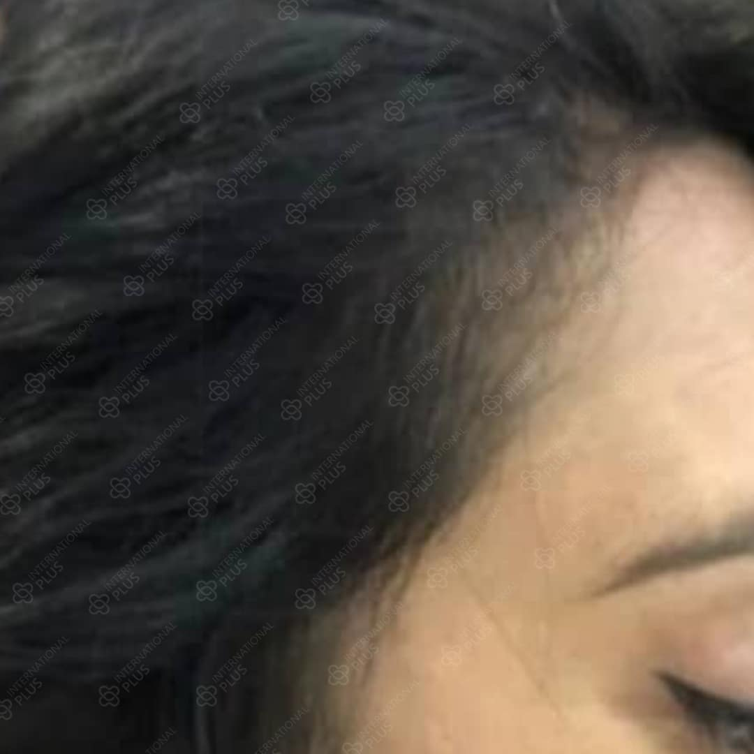 woman-hair-transplant2.jpg